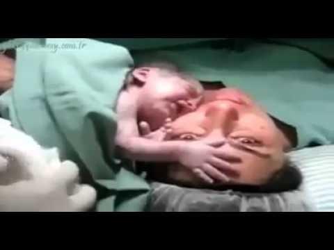 شاهد بالفيديو طفل لا يريد ترك والدته بعد ولادته
